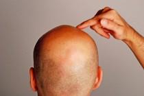 Der tägliche Haarverlust – noch normal oder ein Grund zur Sorge?